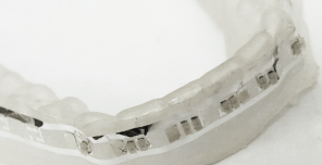 Dental-brace-pics_Page_5-296x152